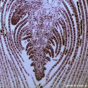 Um einen zylindrischen Zentralzellhaufen liegen mehrer Zellschichten
